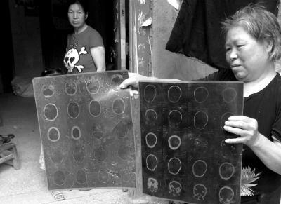 候见志母亲拿着当年候见志父亲头部被砸伤的CT片子。京华时报记者 郑羽佳摄